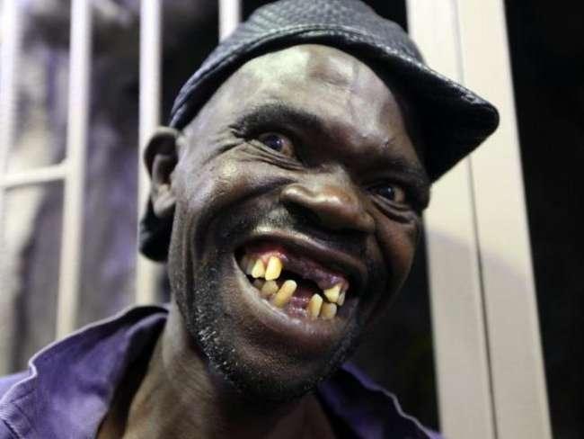 В Зимбабве выбрали самого некрасивого мужчину страны (4 фото)