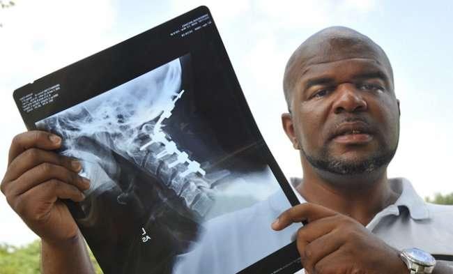 Самые невероятные травмы (8 фото)